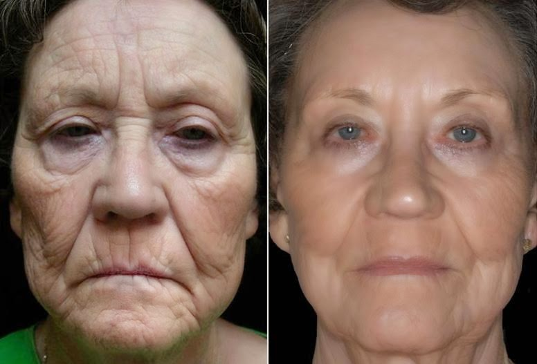 Can Micro-Needling Improve the Appearance of Wrinkles and ...