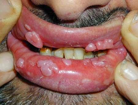 кандилома вирус фото на губе