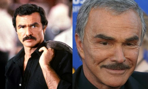 Burt Reynolds Plastic Surgery Fillers Injections And