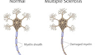 Management Of Multiple Sclerosis - How Is Multiple Sclerosis Treated
