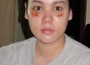 IS  CLAUDINE  BARRETTO,  A  BATTERED  WIFE?