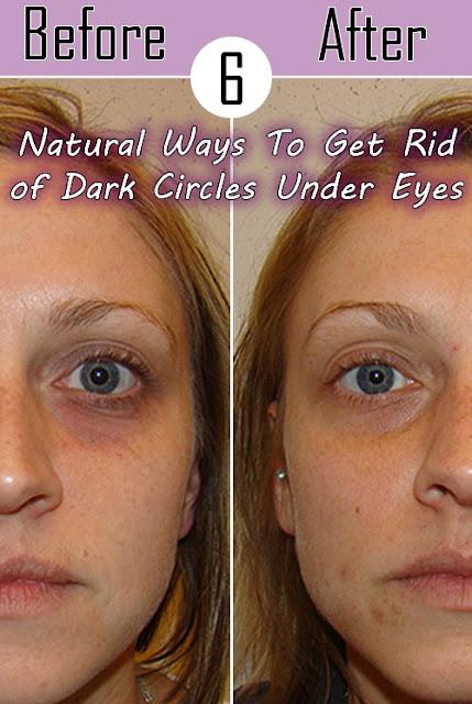 Natural Ways To Get Rid of Dark Circles Under Eyes