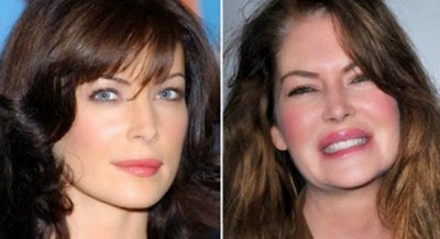 Bad surgery celebrity