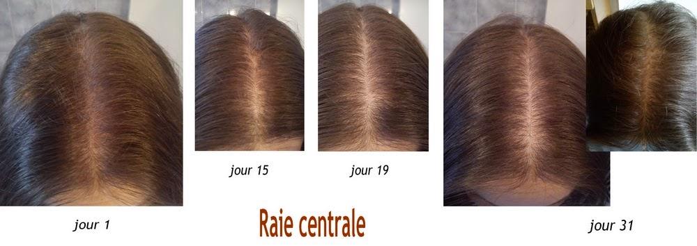 raie cheveux clairsemée