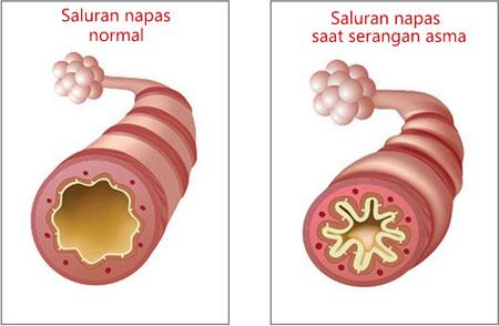 Saluran napas normal dan saat terserang asma