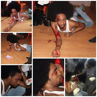 Who Did This To Denrele Edun? Another Celebrity Messy Fight? (photo)