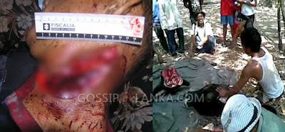 Gossip Lanka, Hiru Gossip, Lanka C News - Youth arrested for killing his friend in Anuradhapura