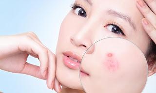 Điều trị bệnh ngoài da từ cây nha đam