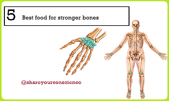 5 Best Foods for Stronger Bones