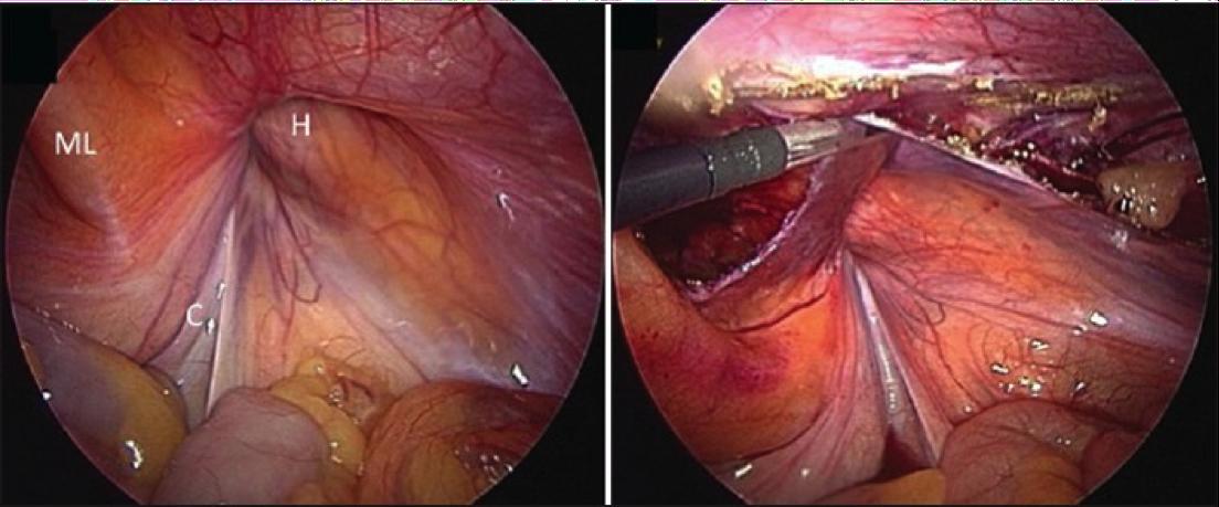 The Surgical Adventure....: Understanding hernias...
