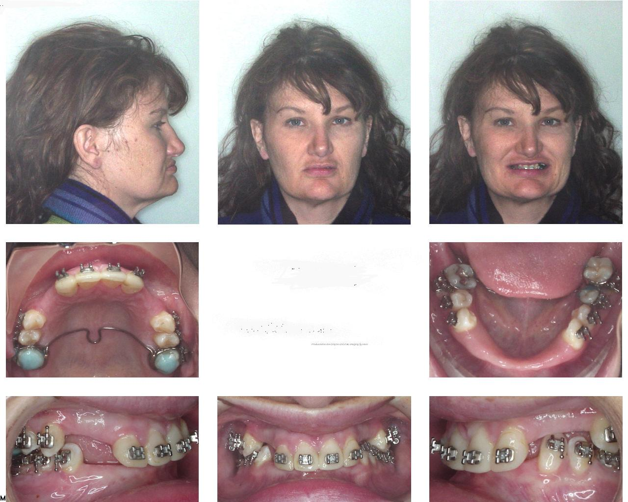 Exelent Surgery For Jaw Wired Shut Jaw Ideas - Electrical Circuit ...
