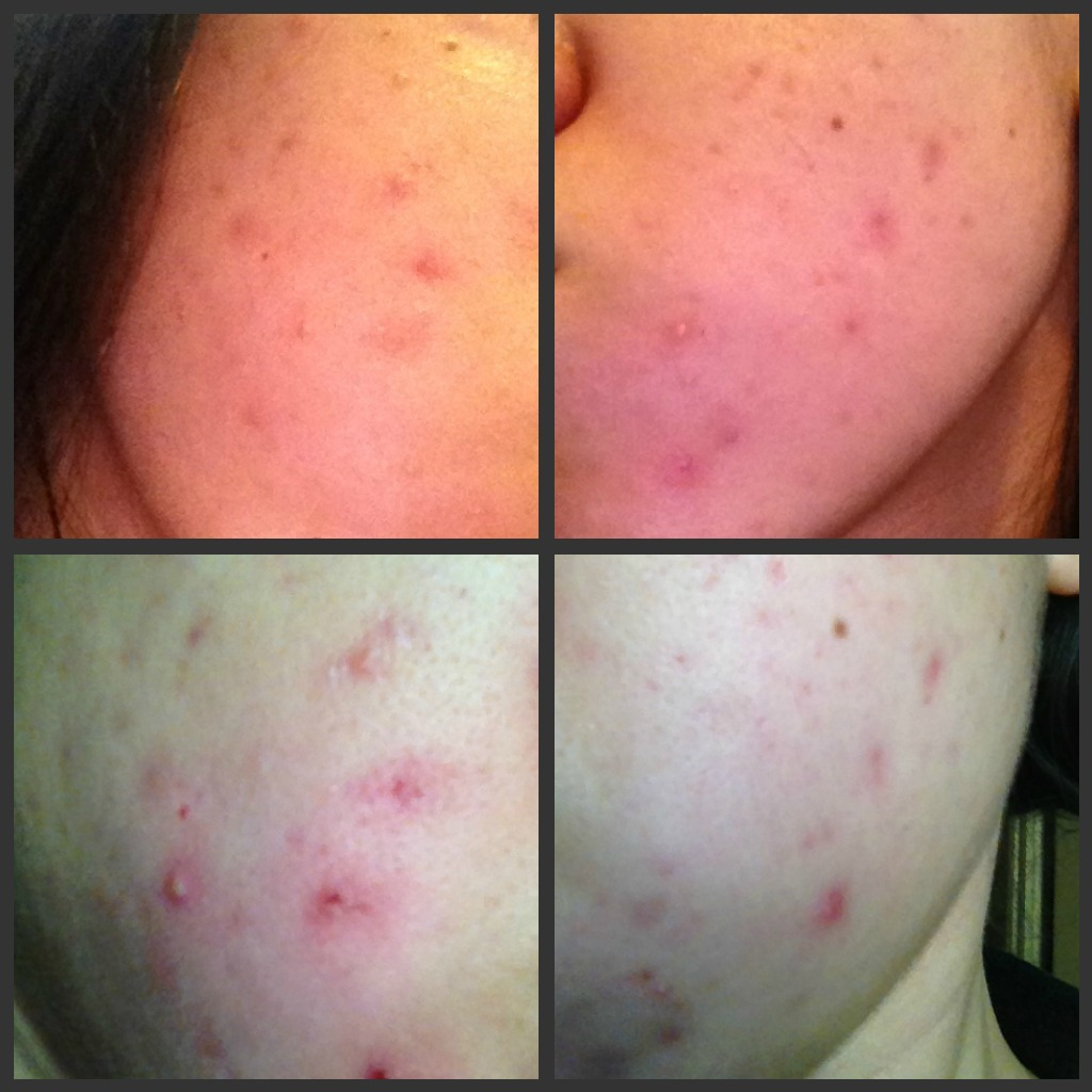 how to use tretinoin cream for acne