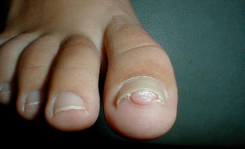 Subungual Pyogenic Granuloma Nails Diseases