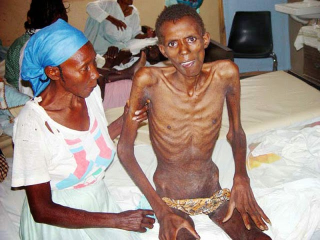 Different Between HIV AIDS  amp  EBOLA VIRUS PatientAids Virus People