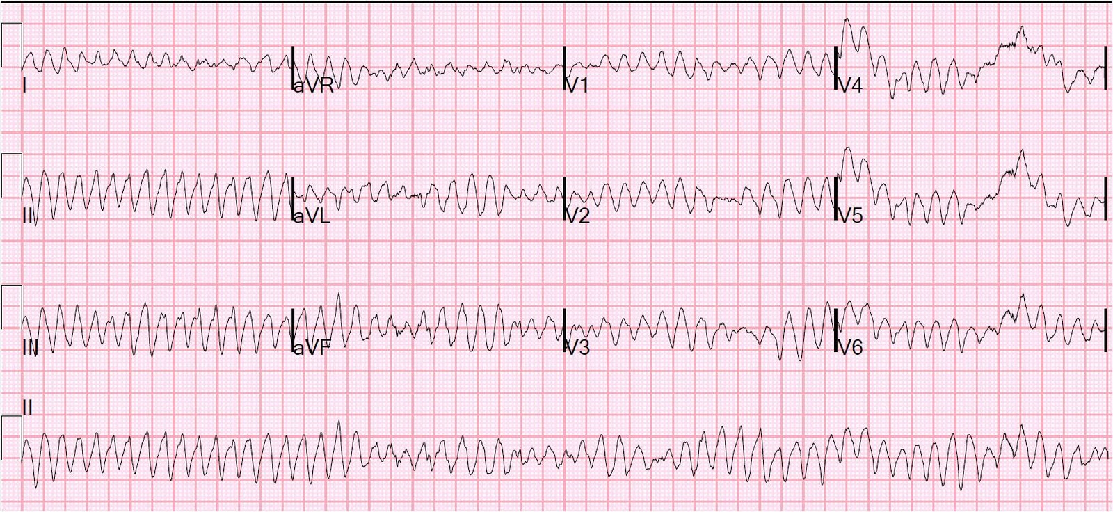 Dr  Smith s ECG Blog  Ventricular fibrillation on a 12-lead ECGVentricular Fibrillation Ecg