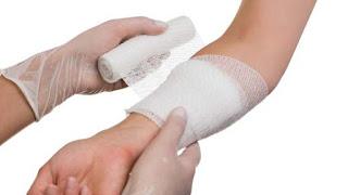 Cara mengatasi luka bakar