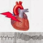 Definition & Symptoms of Heart Arrhythmia - Health Tips