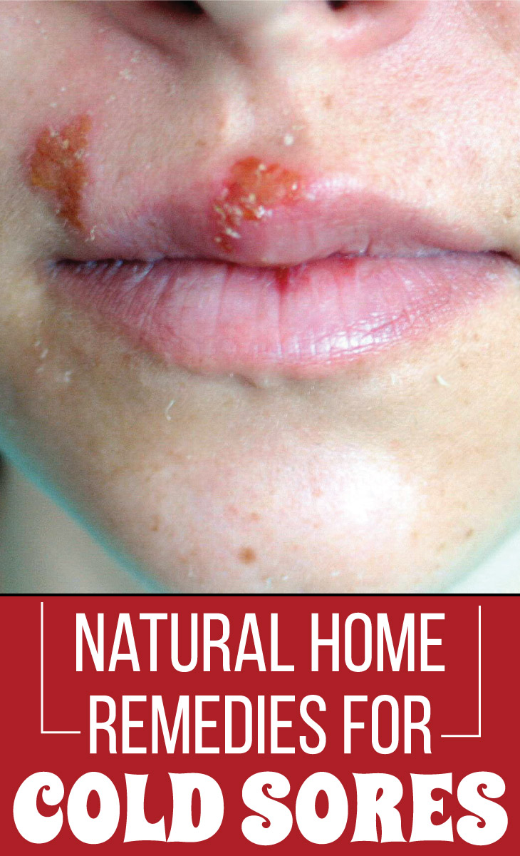 Herbal remedies cold sores