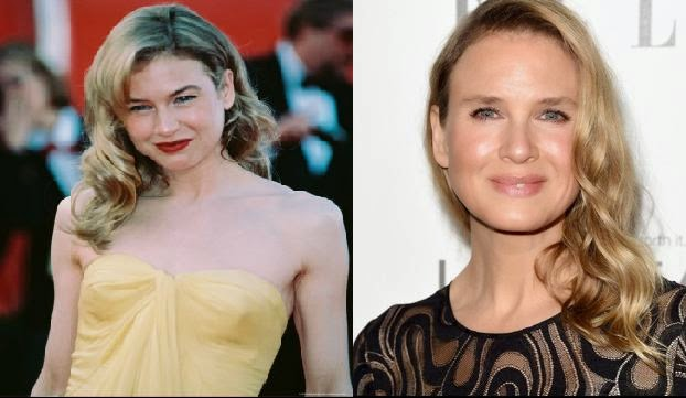 Renée Zellweger New Look, Renée Zellweger Unrecognizable