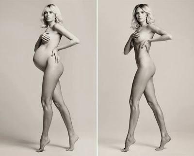 Las fotos post embarazo mas controversiales