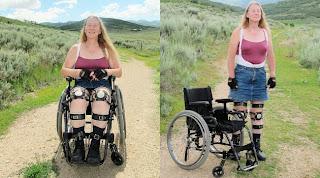 Wanita Sehat Ini Pilih Hidup Sebagai Orang Cacat