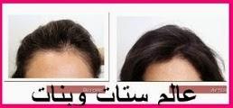 كيف تتم عملية زراعة الشعر بالصور هل الشعر المزروع يتساقط كيفية زراعة الشعر الطبيعي