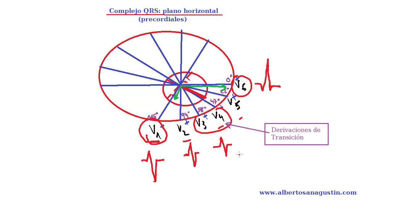 Complejo QRS en derivaciones horizontales, electrocardiograma normal