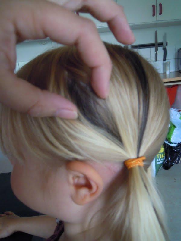 fläckar i hårbotten