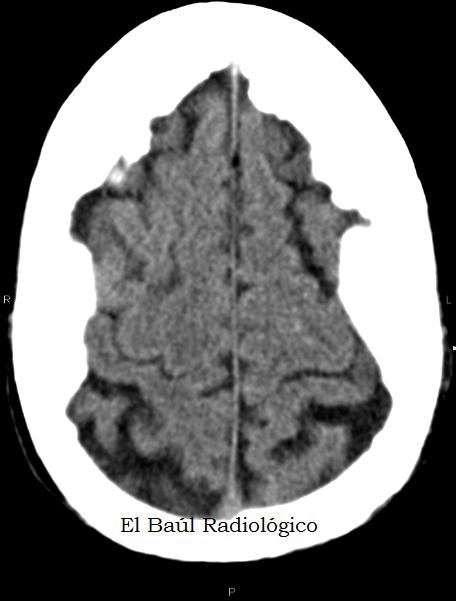 hiperostosis+2.png