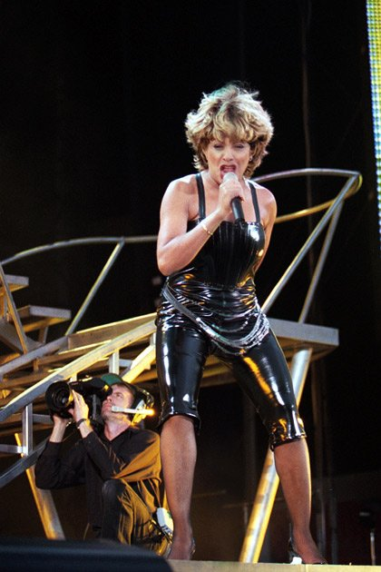 Tina Turner Insured Legs for $ 3.2 million