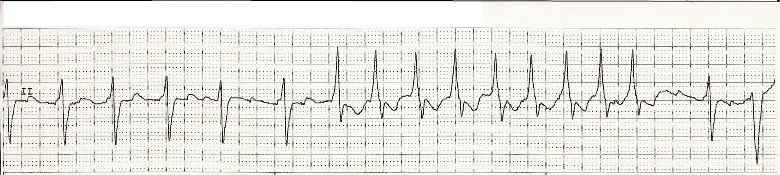 atrial fibrillation with paroxysmal sinus tachycardia b atrial    Paroxysmal Atrial Tachycardia Vs Sinus Tachycardia