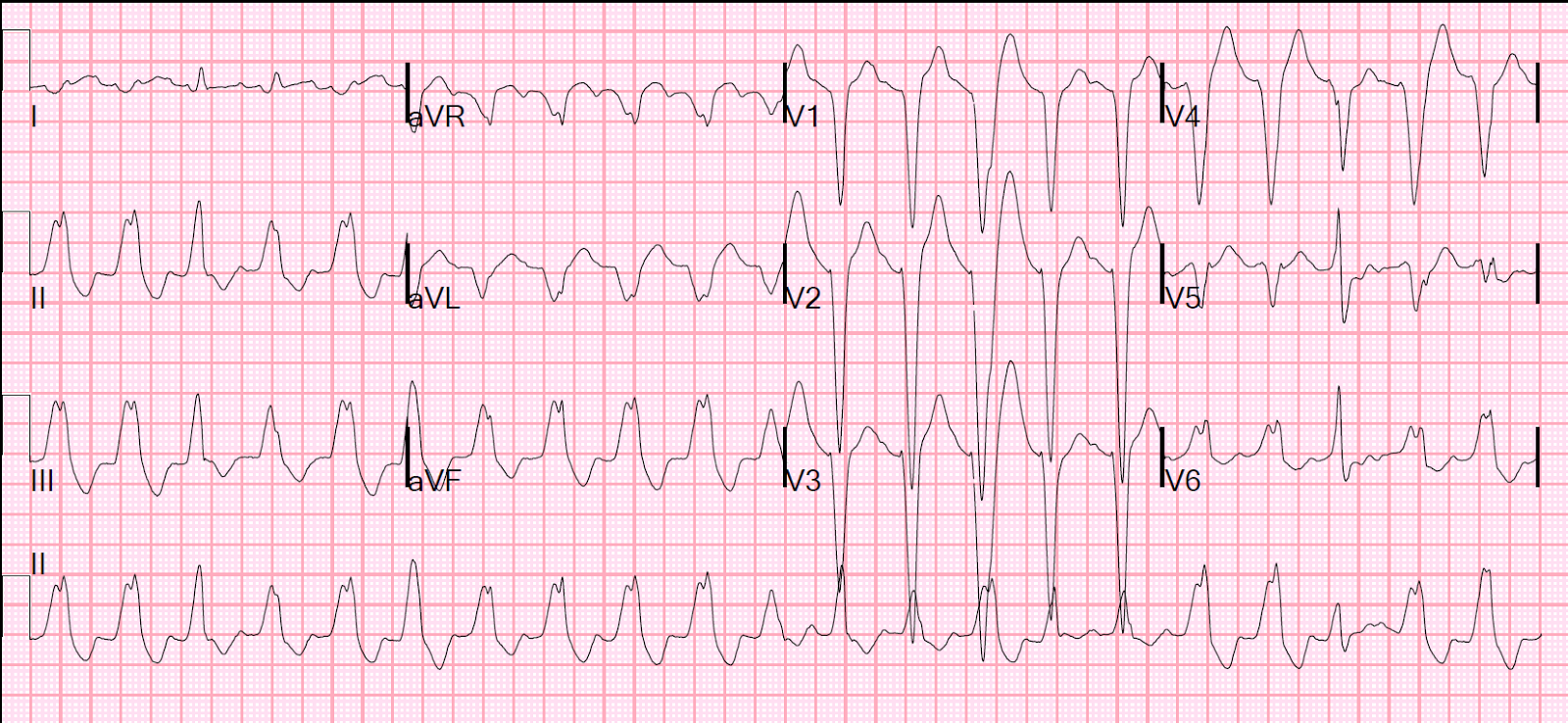 """an analysis of the heart of fusion The ecg criteria to diagnose ventricular tachycardia """"fusion beats"""" and """"capture beats"""" can also be when the heart rate is between 60 and."""