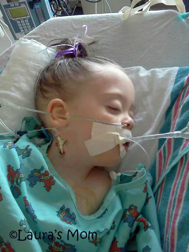 2nd Surgery Dec 2011