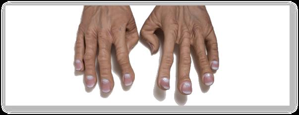 Pahidermoperiostoza (pahidermia plicaturata, pahiperiostoza)