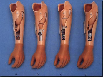 http://1.bp.blogspot.com/-yMK5a6CE8Qw/TWTolnoGNxI/AAAAAAAAE3o/zSEV2ntvqIA/s1600/protese.jpg