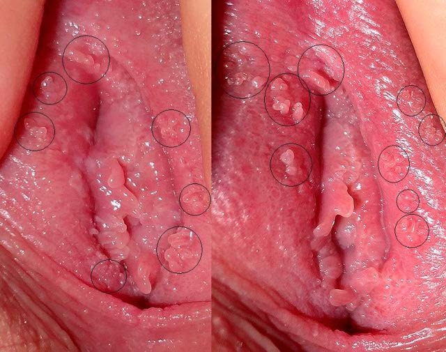 White bump on vaginal opening