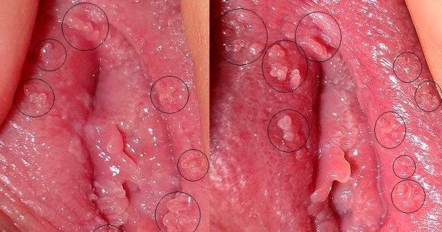 pictures genital warts vulva