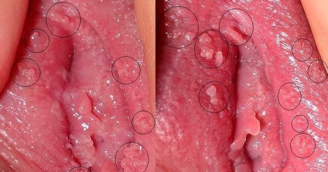 Huidtumoren (benigne): condylomata acuminata (genitale ...