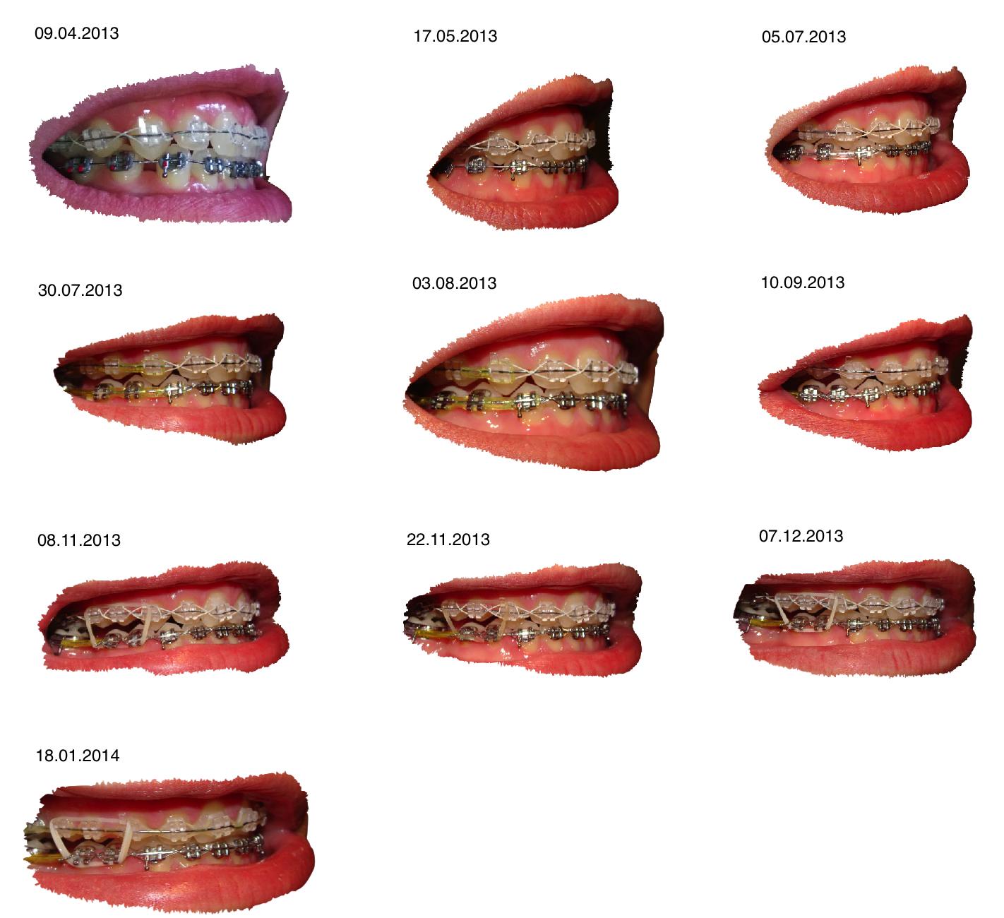 Mein Leben mit Zahnspange: Update #13: Offener Biss