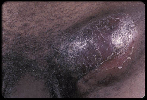 Sexually Transmitted Diseases Slideshow Pictures - OnHealth