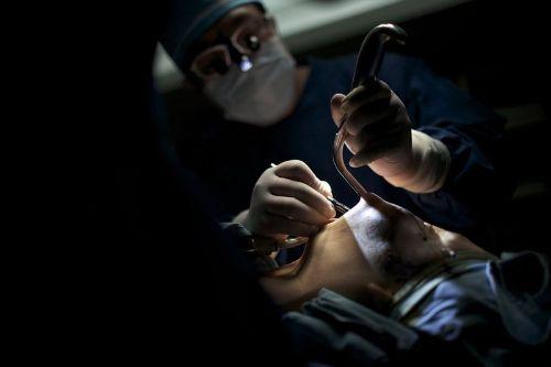 Operasi Plastik Wajah
