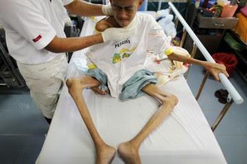 http://asalasah.blogspot.com/2012/12/foto-foto-mengerikan-para-penderita.html