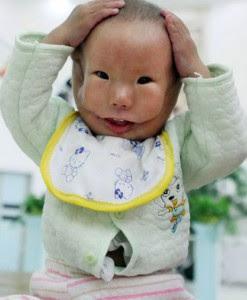 طفل يولد وعلى وجهه قناع..سبحان الله