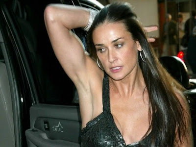 Demi Moore Recovery