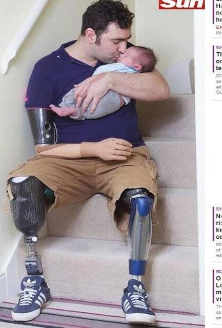 Ex-soldado supera perda das pernas e de um braço e cuida de filho recém-nascido