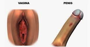 Obat menghilangkan kutil kelamin