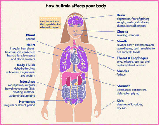 the effects of bulimia and anorexia nervosa on women