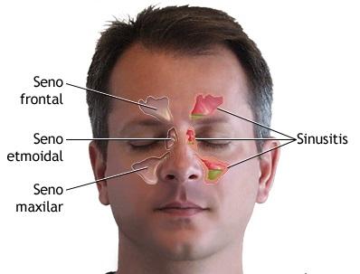 remedios-caseros-para-curar-sinusitis