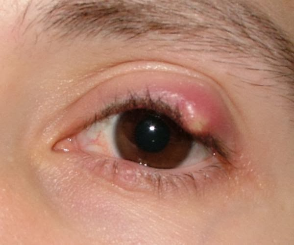 how to get rid of blocked glands in eyes