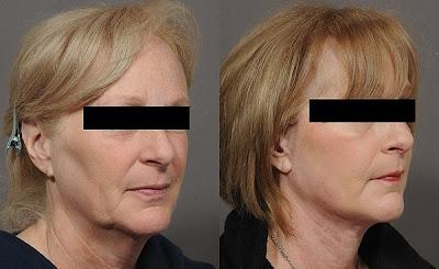 El rejuvenecimiento facial